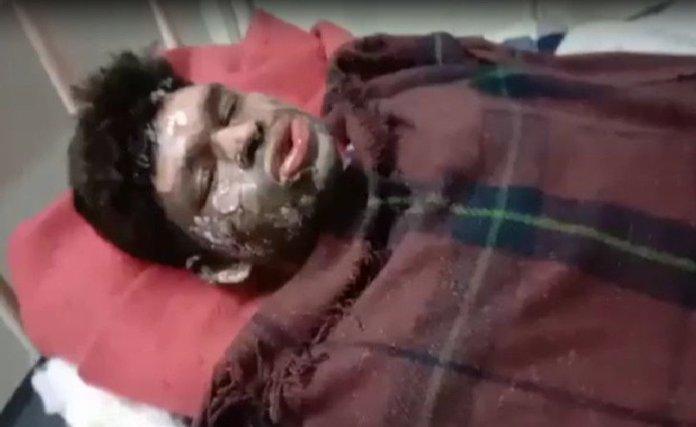 A Dalit youth Dhaniram Ahirwar was attacked and burnt by a mob of Muslim men in Sagar, Madhya Pradesh