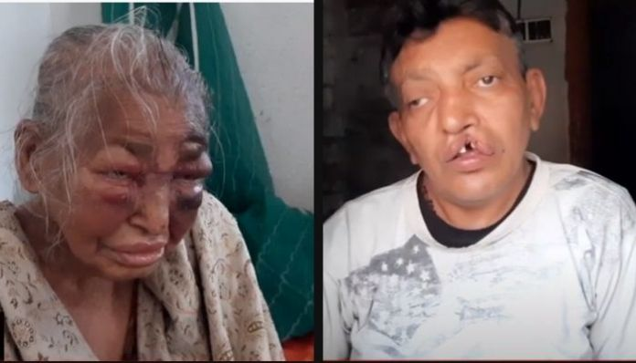 West Bengal: BJP worker, his mother brutally thrashed by 'TMC goons'
