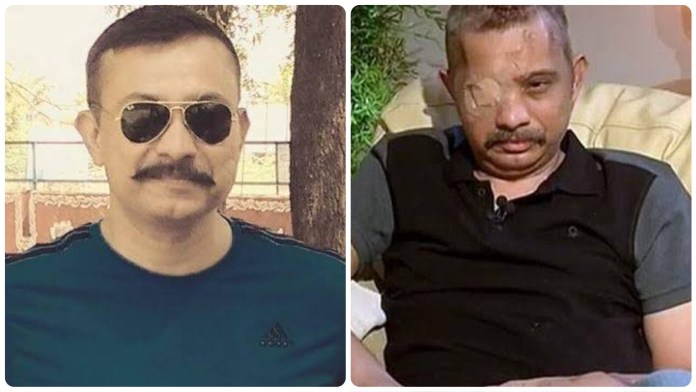 Chetan Kumar Cheetah, the braveheart who scripted a miraculous recovery after sustaining several bullet injuries is critical with COVID-19