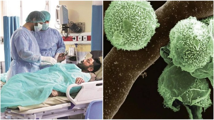 The first case of Aspergillus or green fungus infection in a Covid survivor has been reported in India