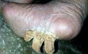 woman claims 'toenail horns'