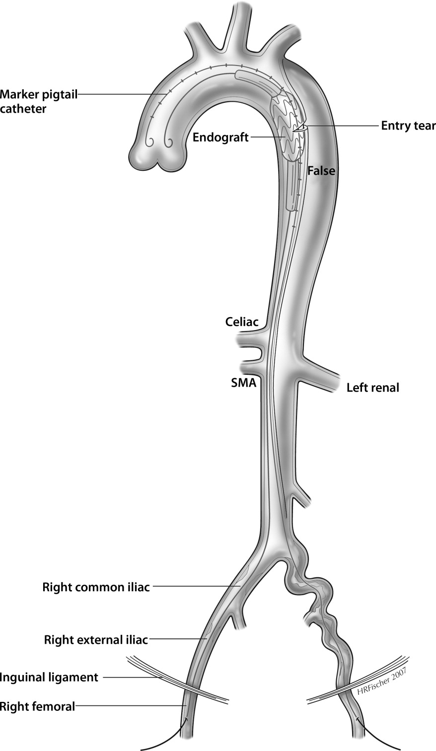 Endovascular Therapy for Malperfusion in Acute Type B