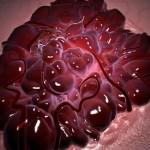 An Introduction Cancer