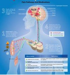 pain explained [ 1000 x 1297 Pixel ]