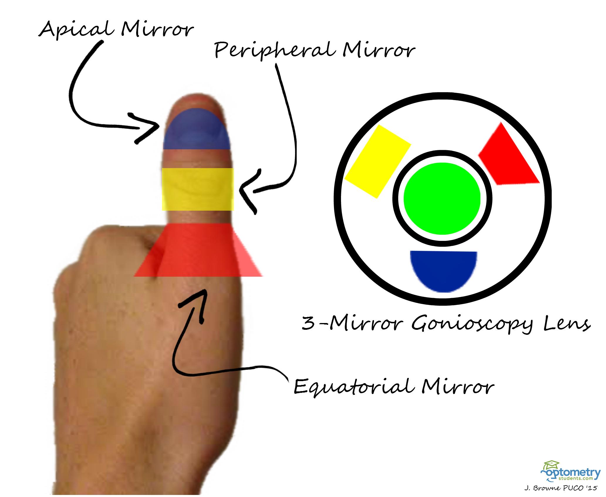 Loss Peripheral Vision Glaucoma