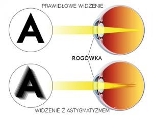 astygmatyzm - przekrój oka