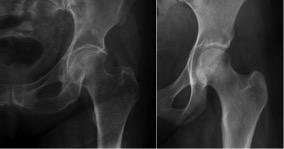 Aspecto da osteoporose: observe na radiografia da esquerda como o osso aparece menos, por ser mais rarefeito.