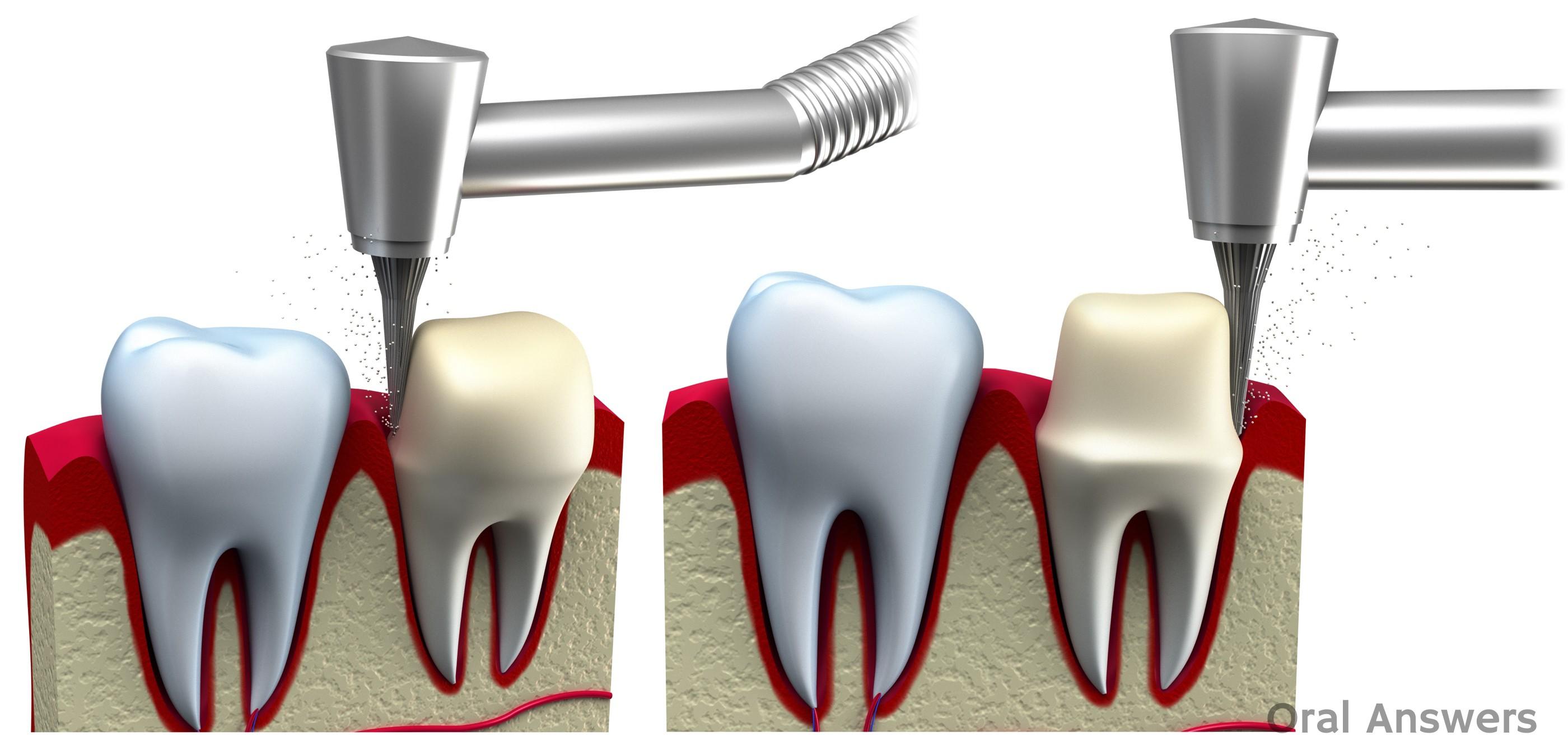 Dental Crown Procedure: What is a Dental Crown / Cap ...