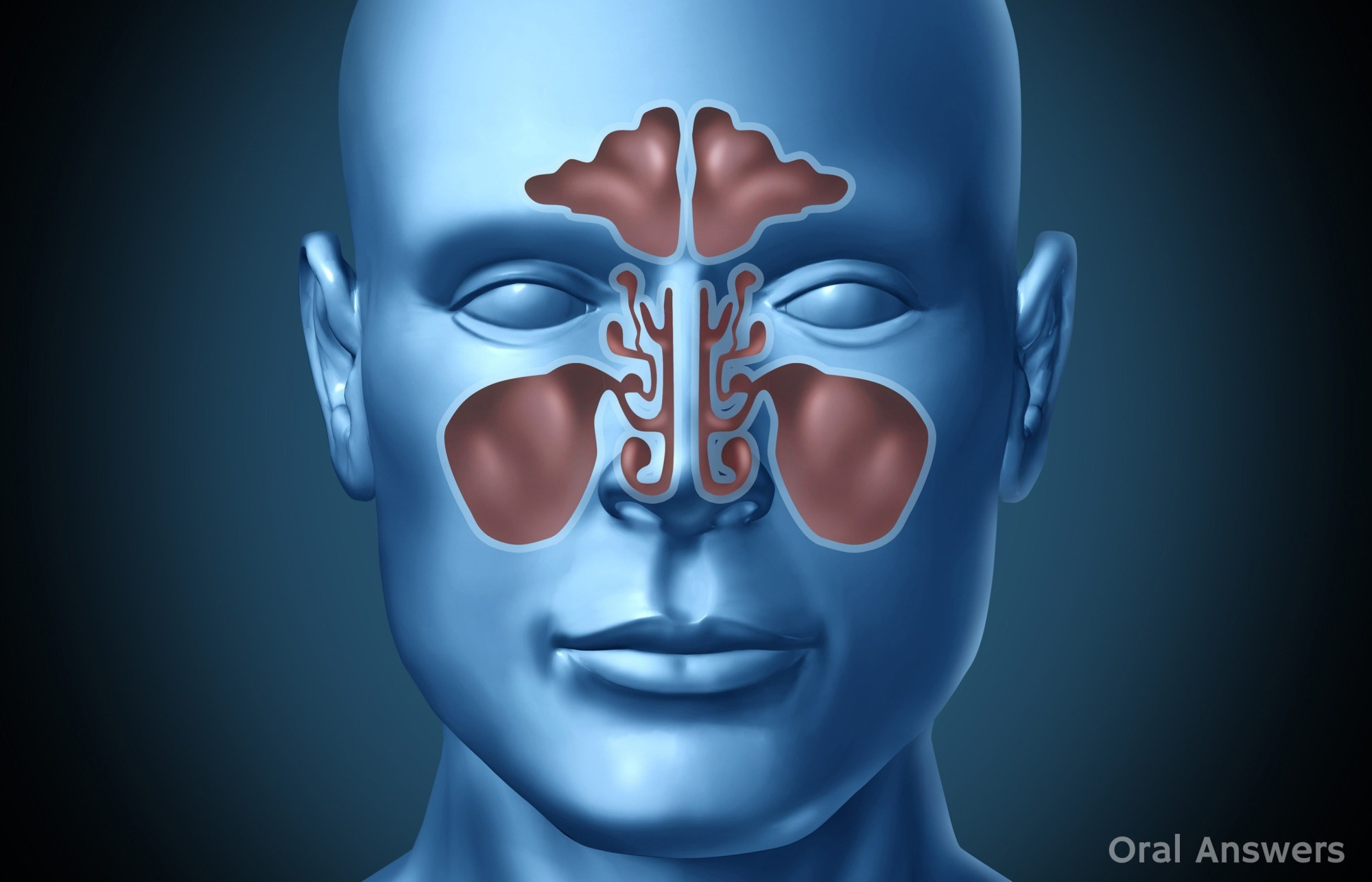 hight resolution of sinus infection can cause tooth pain