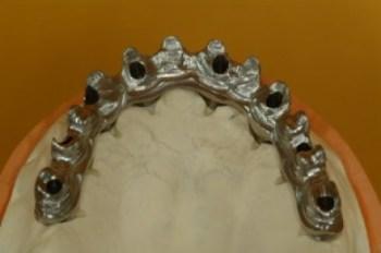 """Résultat de recherche d'images pour """"armature bridge dentaire"""""""