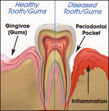 Periodontal Care   Deep Cleaning   Scaling   Gum Disease