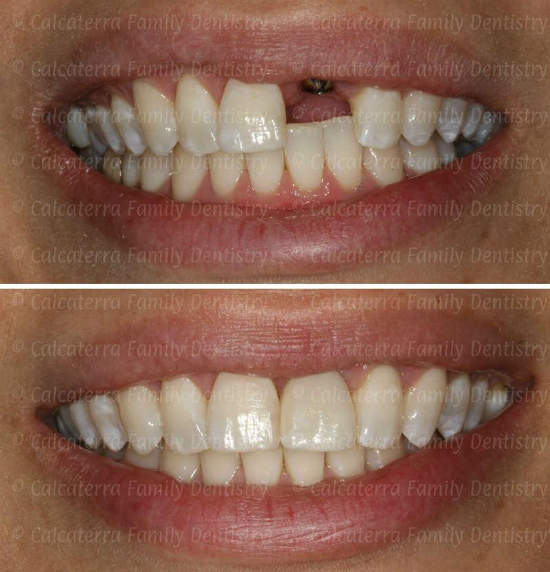Types Flipper Dentistry