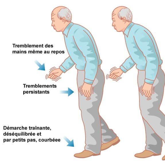 La maladie de Parkinson : généralités et traitements - Ordoscopie.fr