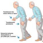 maladie parkinson generalités traitements