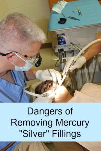 dangers of removing silver fillings
