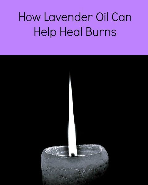 Does Lavender Oil Help Burns?