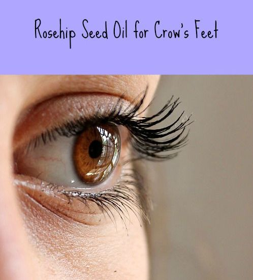 where to buy rosehip seed oil