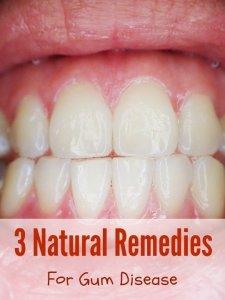 Natural Remedies Gingivitis Gum Disease Organic Palace Queen
