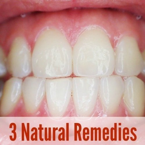 natural remedies gingivitis gum disease