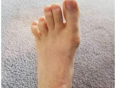 Best essential oils for toenail fungus