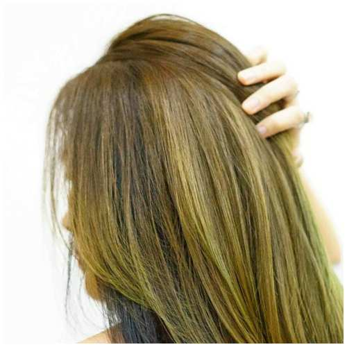 female hair loss remedies