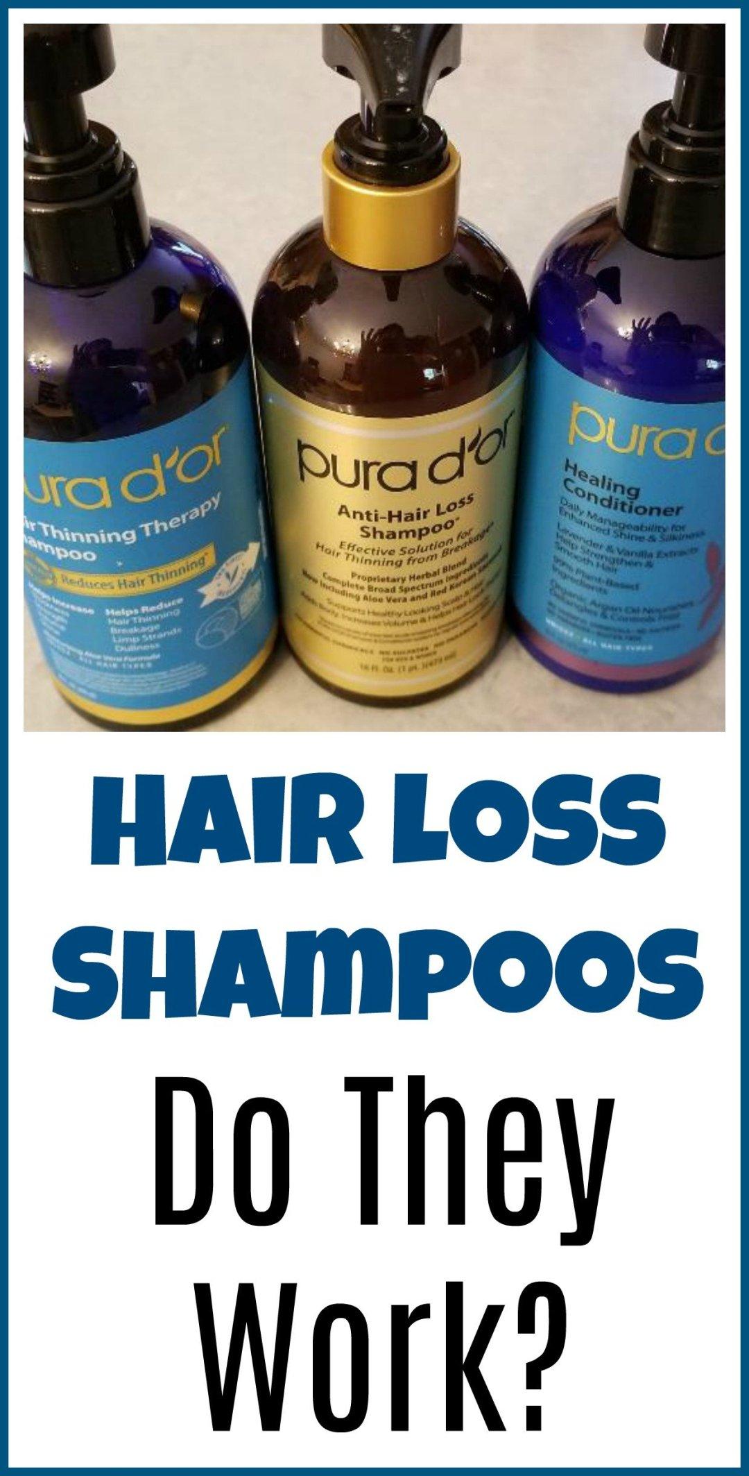 Do hair loss shampoos work