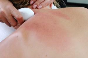 Moxa Guasha Treatment