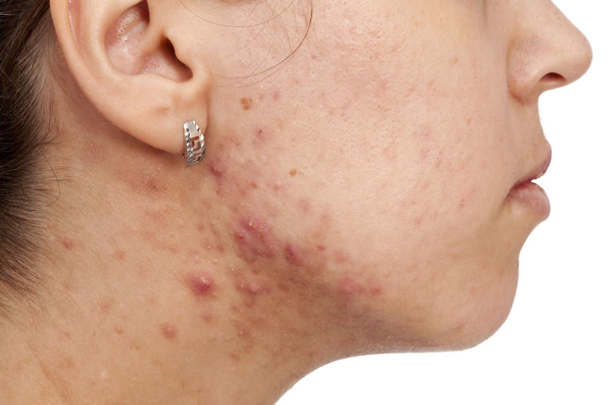 address skin health with chinese medicine