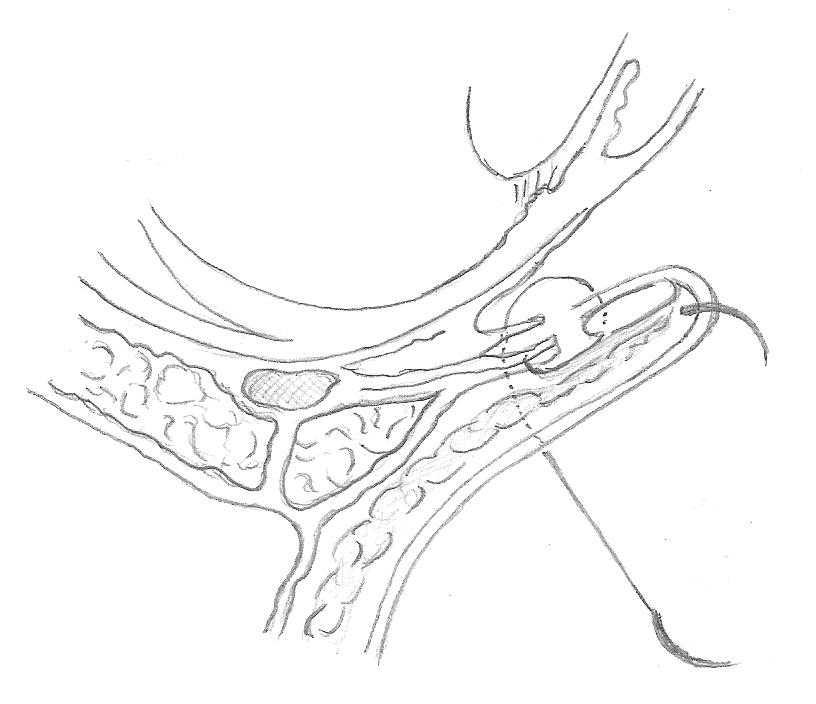 FIG. 6 Passaggio a tutto spessore attraverso la palpebra. Tutti e due gli aghi vanno poi passati dal fornice inferiore, a tutto spessore, attraverso la palpebra e fatti fuoriuscire, sulla cute, 12mm inferiormente al margine palpebrale.
