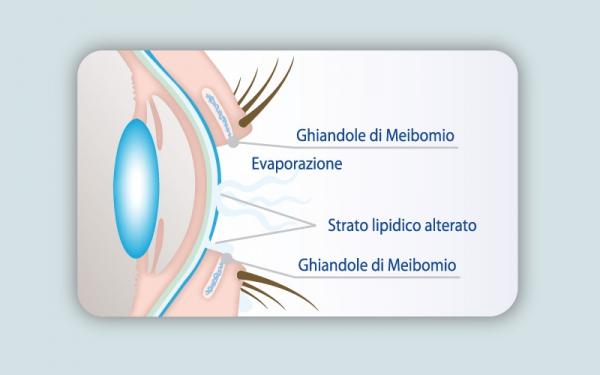 Luce pulsata e Radiofrequenza per curare occhio secco e blefarite (IPLRF) 3