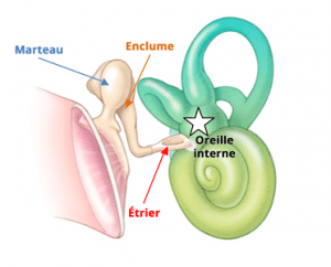 Traitement orl de l'otospongiose à Nice
