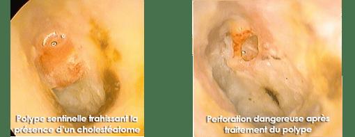 perforation-tympan-orl-nice