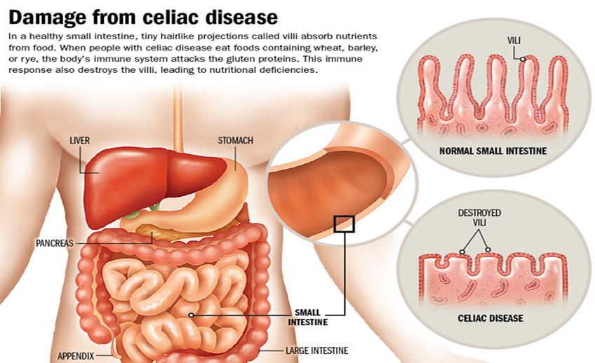 Resultado de imagem para celiac disease