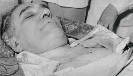 Il corpo di Monsignor Romero dopo l'attentato