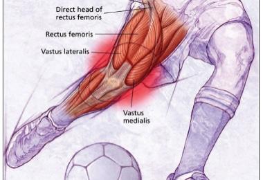 Tear of the Rectus Femoris Direct Head – Surgical Repair
