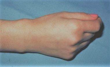 De Quervain's Tenosynovitis – A Cause of Wrist Pain