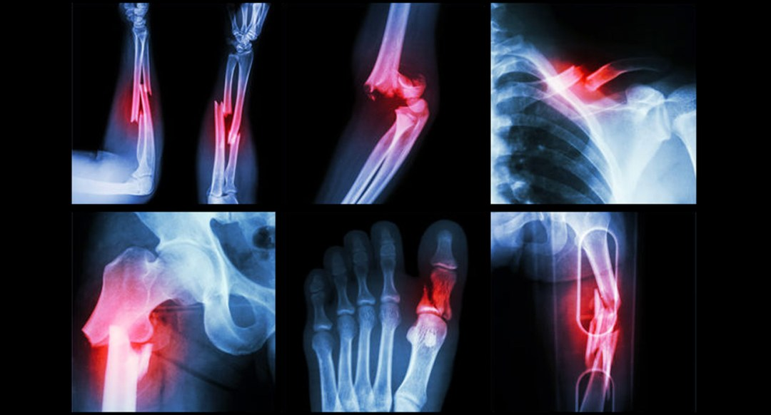 Multiple images of fractures in the body.