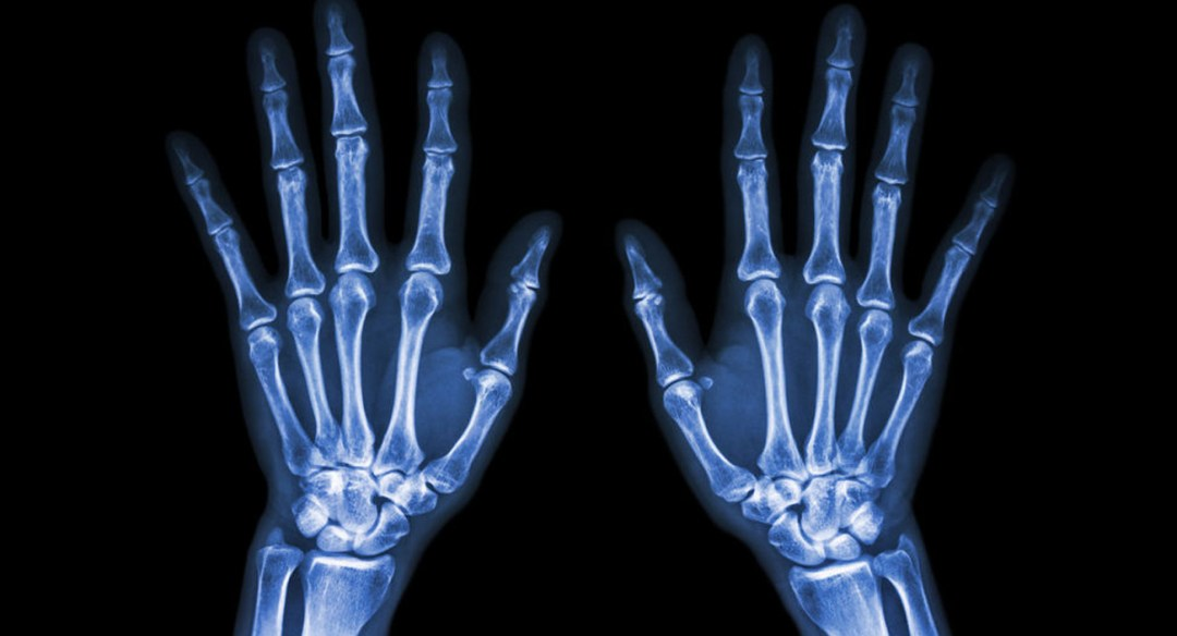 X-ray of two hands, showing bones.