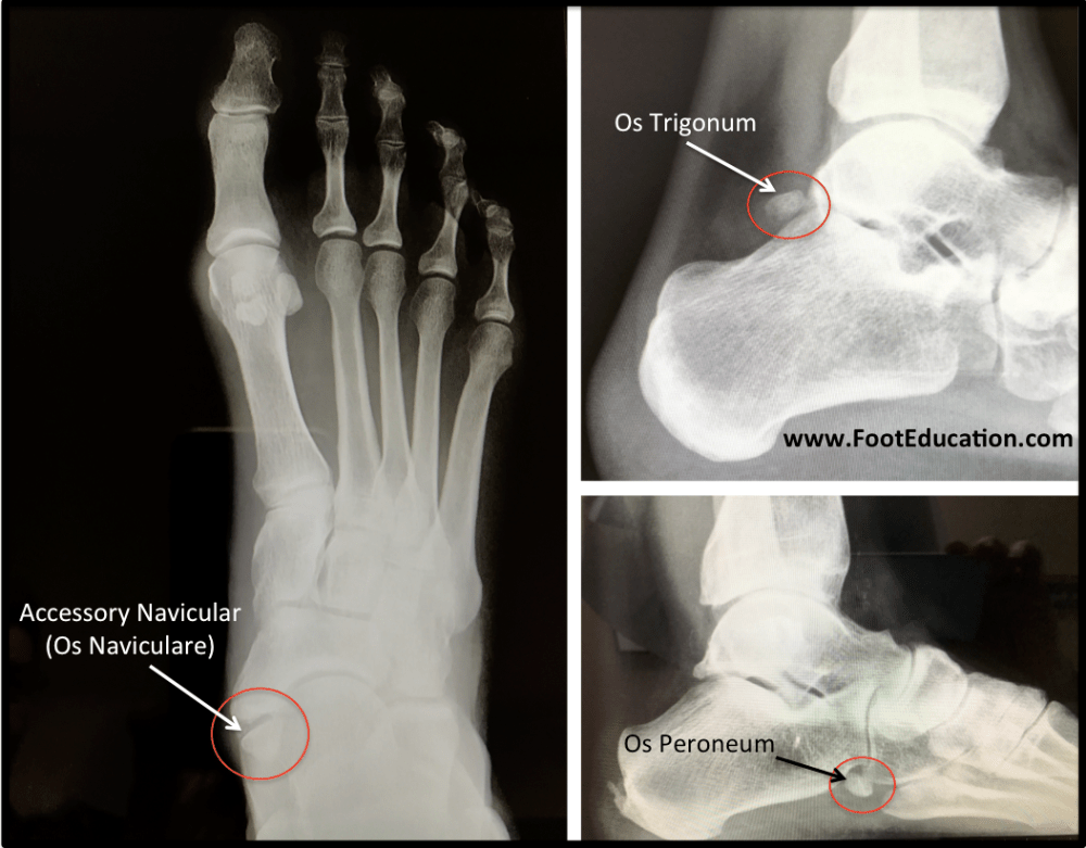 medium resolution of figure 9 common accessory ossicles of the foot