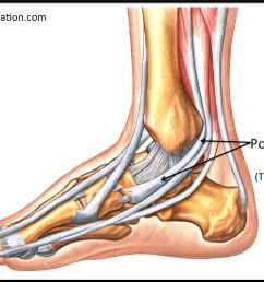 figure 2 tibialis posterior tendon [ 1155 x 751 Pixel ]