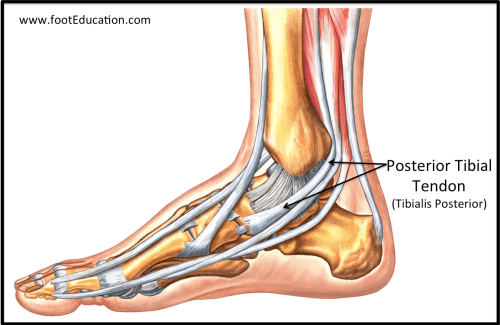 small resolution of figure 2 tibialis posterior tendon