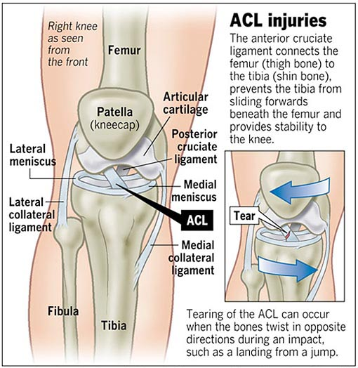 A Patient 39 S Guide To Anterior Cruciate Ligament Injuries Orthopaedic Clinic Singapore