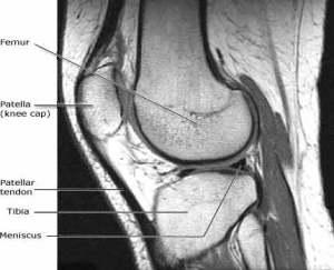 MRI of the knee