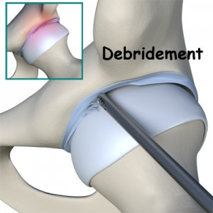 Hip Labral Tear Debridement