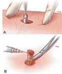Biopsy / Lump Removal