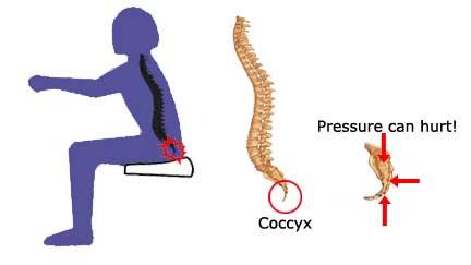 Tail Bone Pain (Coccydynia)