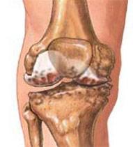 Knee Osteoarthritis (Degenerative Joint Disease) Treatment. Symptoms & Causes