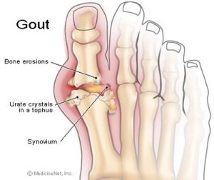 Gout - Anatomy of Feet