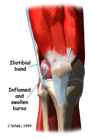 Itbs iliotibial band syndrome symptoms causes for knee for Exterior knee pain