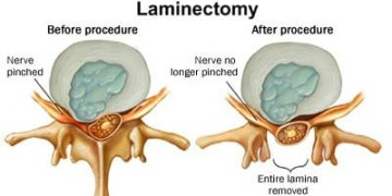 What to Expect with a Laminectomy in Singapore